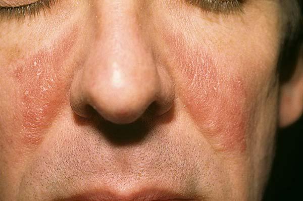 грибок фото на лице