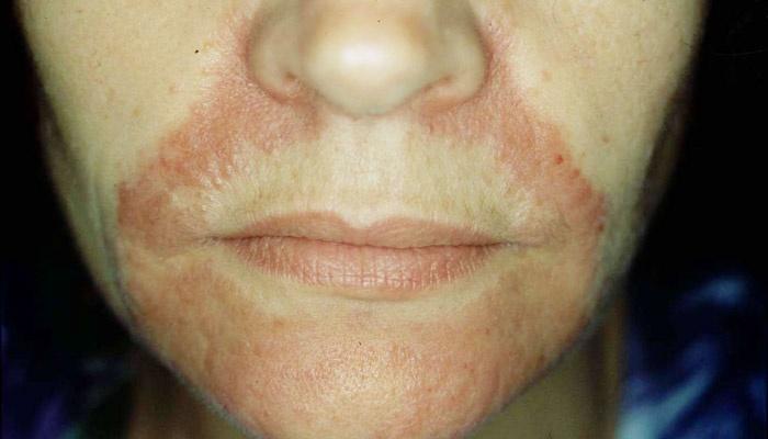 Воспаление кожи на лице чем лечить