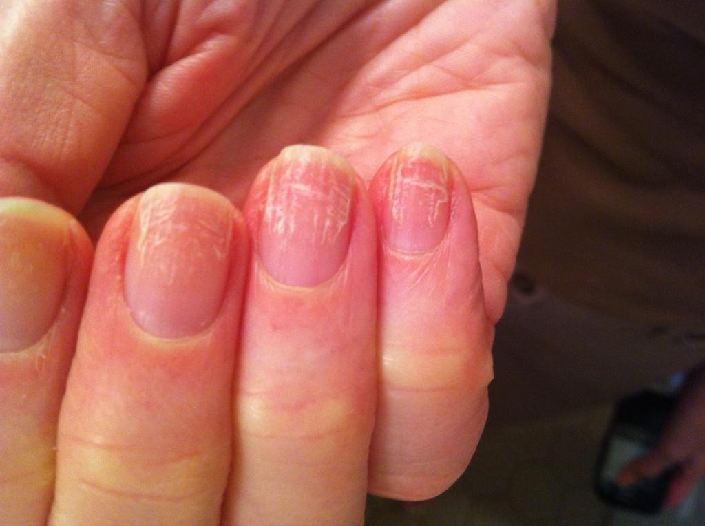 Все виды грибка ногтей на руке