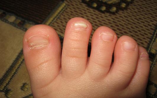 Комаровский как вылечить грибок ногтей